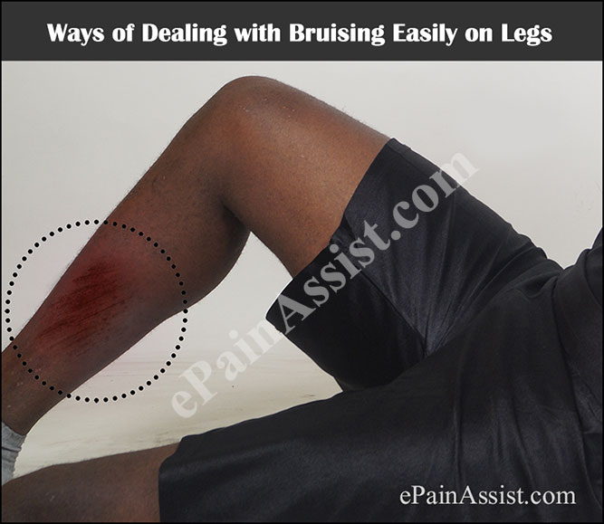 Ways of Dealing with Bruising Easily on Legs