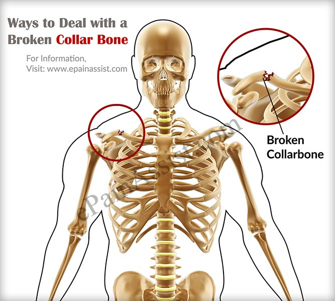 ways to deal with broken collarbone & how long does it take to, Cephalic Vein