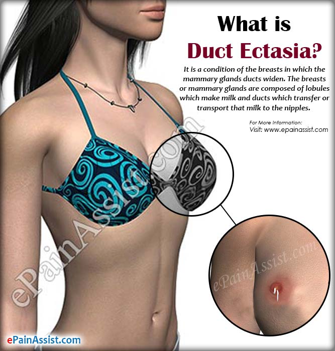 What is Duct Ectasia?