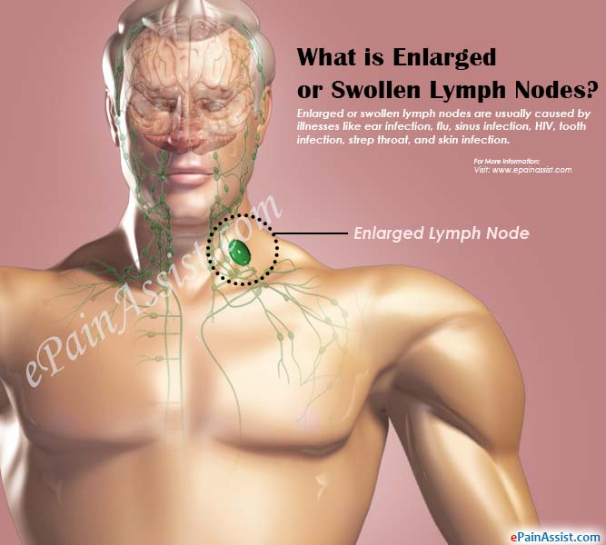 What is Enlarged or Swollen Lymph Nodes?