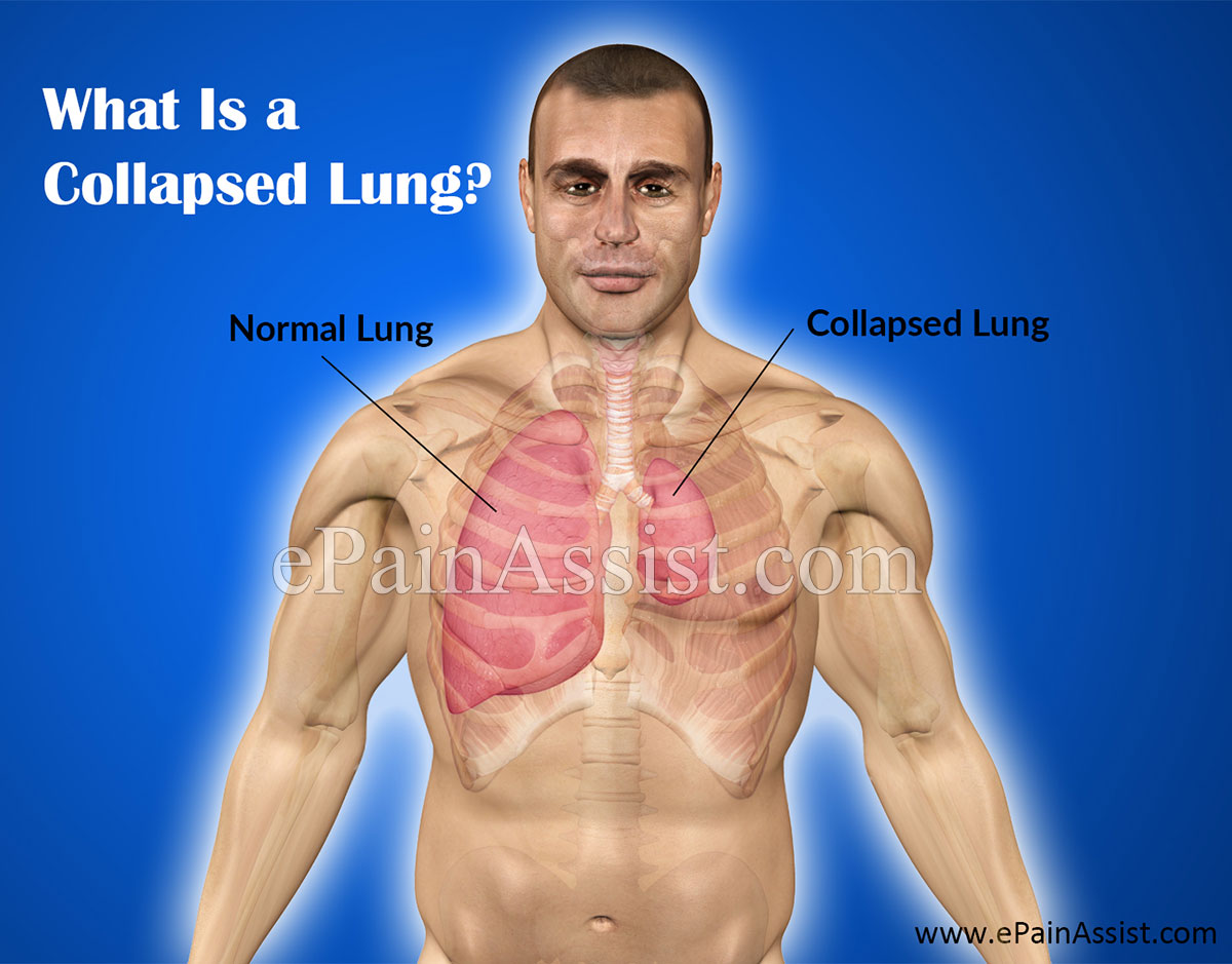 What Is a Collapsed Lung or Pneumothorax?