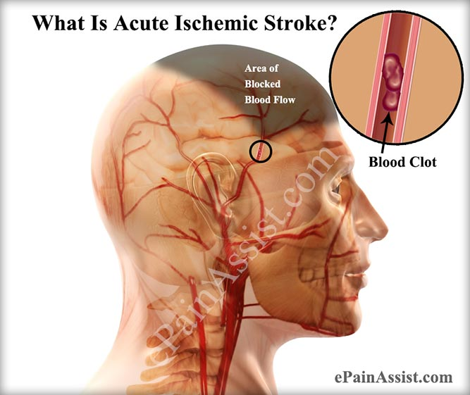 brain stroke causes and symptoms  Acute Ischemic Stroke|Causes|Symptoms|Treatment-Anticoagulants ...