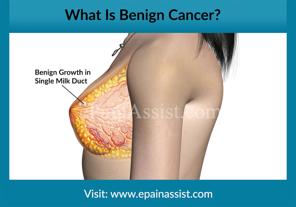 Benign breast lump what is it