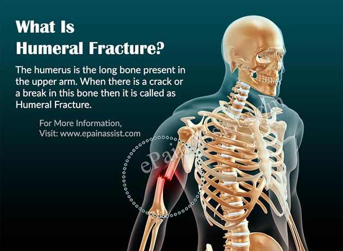 What Is Humeral Fracture?