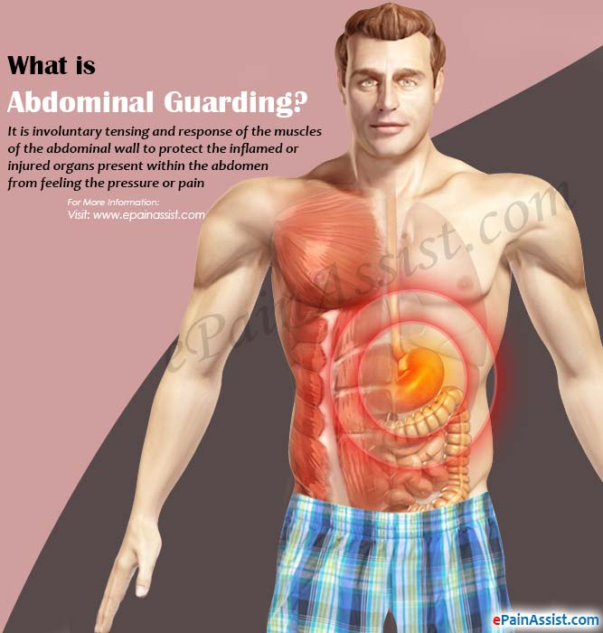What is Abdominal Guarding?