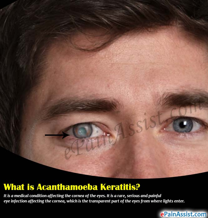 What is Acanthamoeba Keratitis?