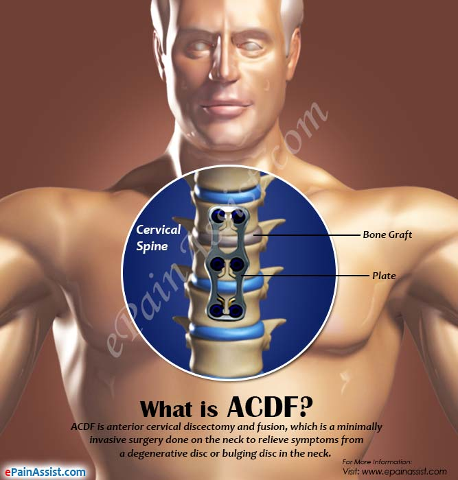 What is ACDF?