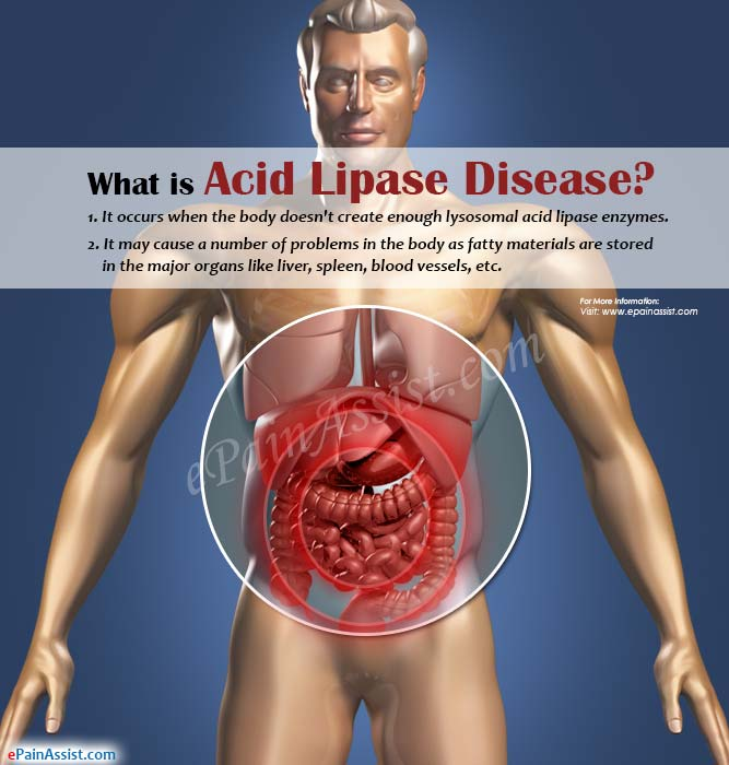 What is Acid Lipase Disease or Lysosomal Acid Lipase Deficiency?