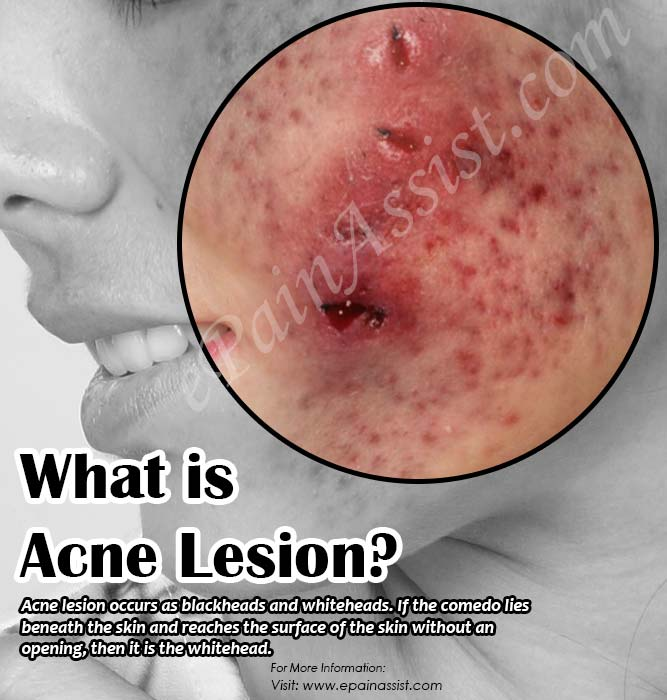 What is Acne Lesion?