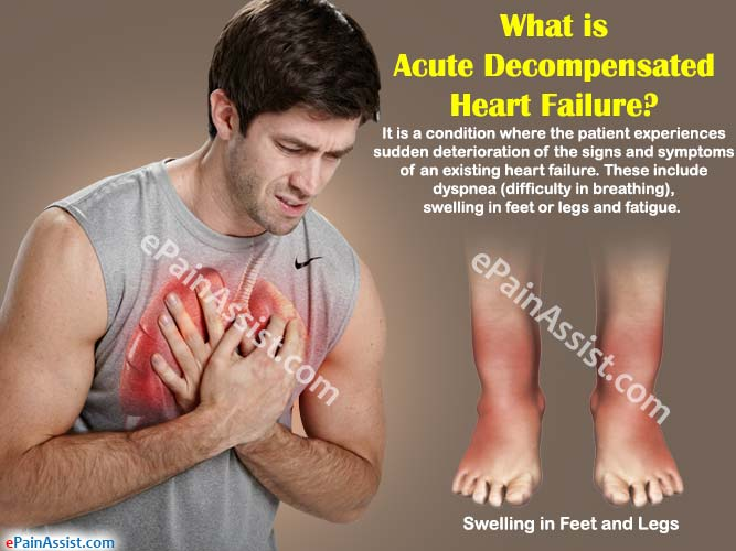 What is Acute Decompensated Heart Failure?