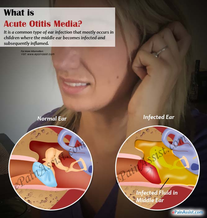 media adult Otitis with effusion in