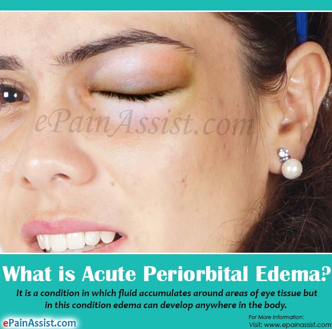 What is Acute Periorbital Edema?
