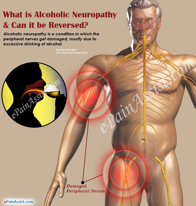 What is Alcoholic Neuropathy & Can it be Reversed?