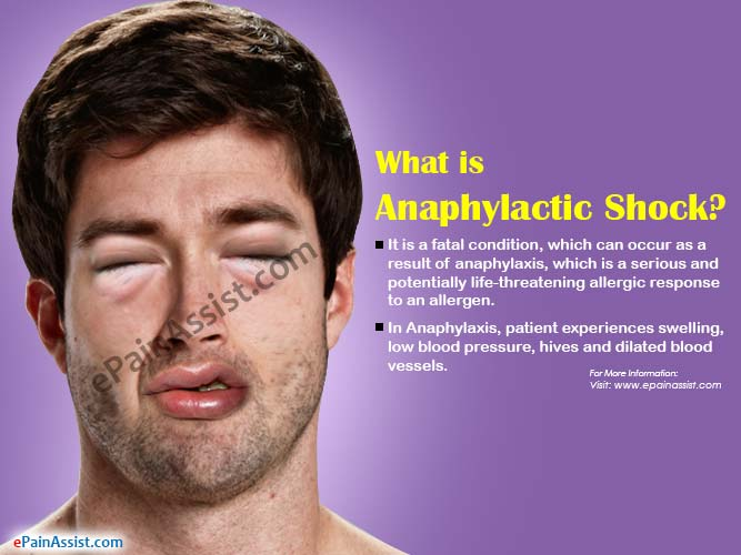 What is Anaphylactic Shock?