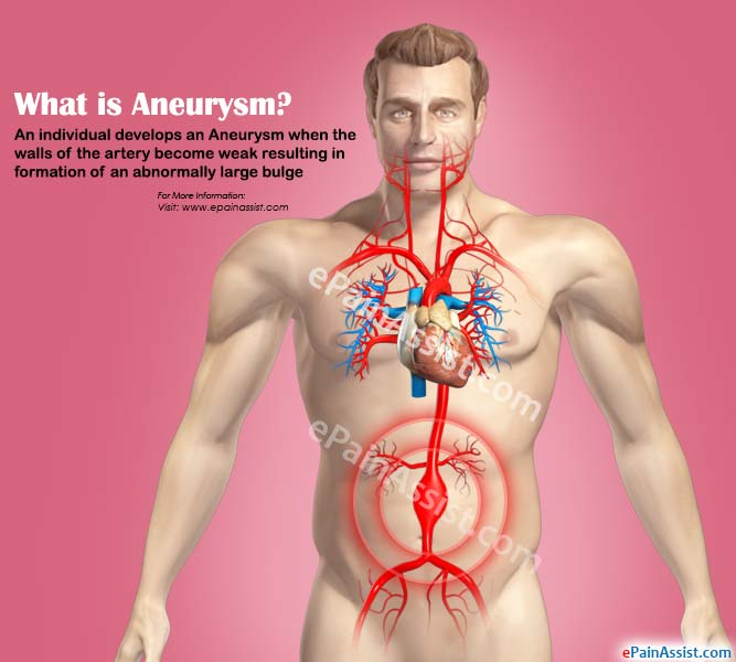 What is Aneurysm?