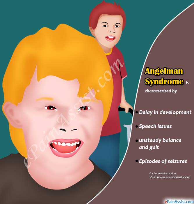 what is angelman syndrome causes symptoms treatment risk factors