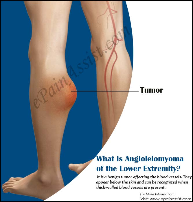 What is Angioleiomyoma of the Lower Extremity?