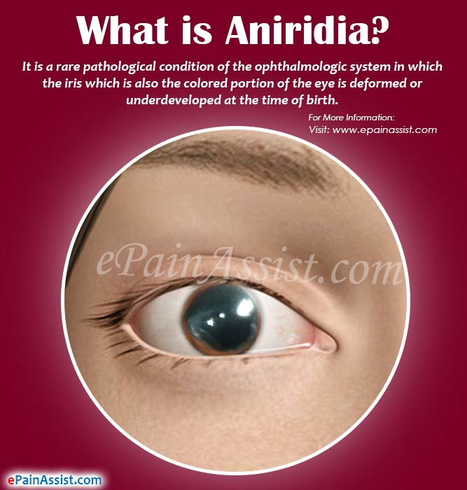 What is Aniridia?