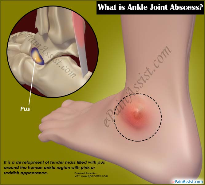 What is Ankle Joint Abscess?