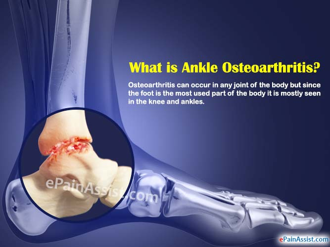What is Ankle Osteoarthritis?
