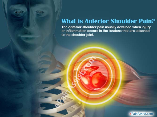 What is Anterior Shoulder Pain