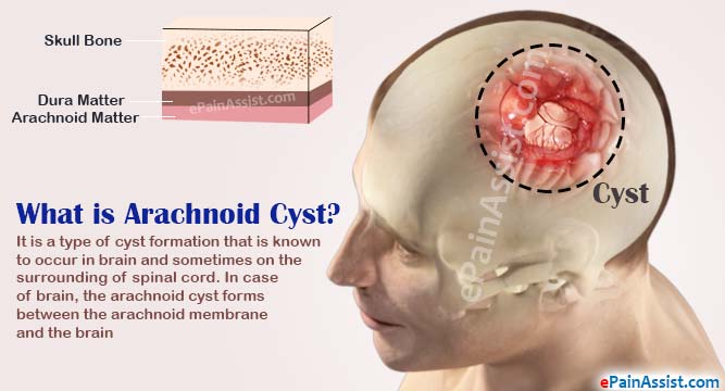 arachnoid cyst|causes|symptoms|tests to diagnose, Sphenoid