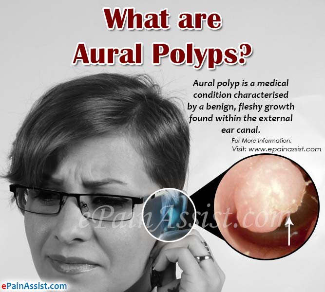 What are Aural Polyps?