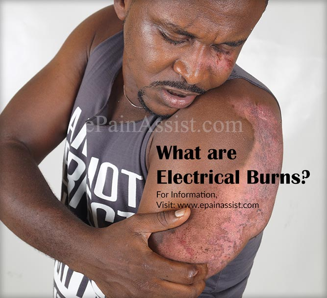 What are Electrical Burns?