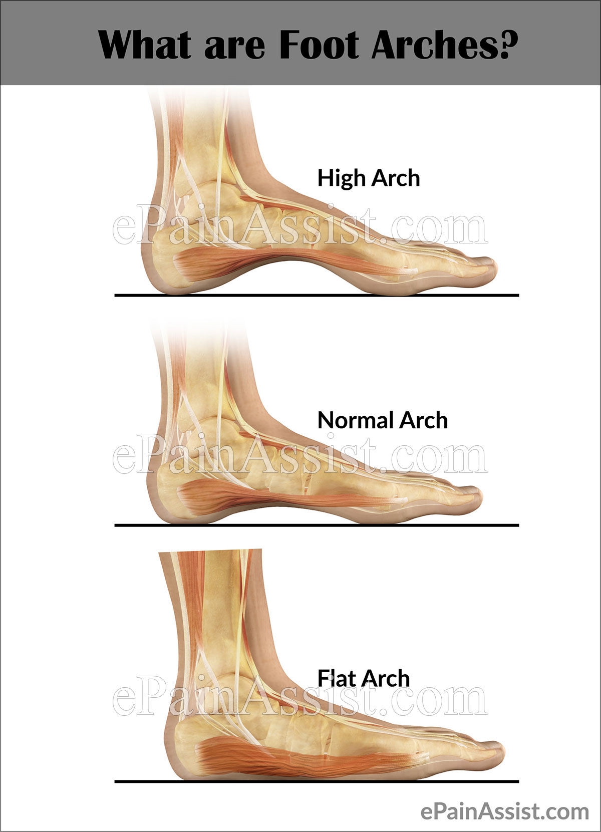 Arch Strain: What Causes Pain in the Arch of the Foot?
