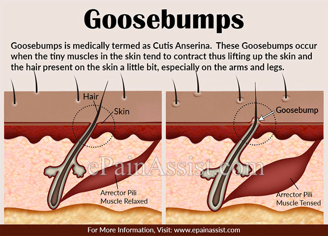 What Causes Abnormal Goosebumps & How to Get Rid of it?