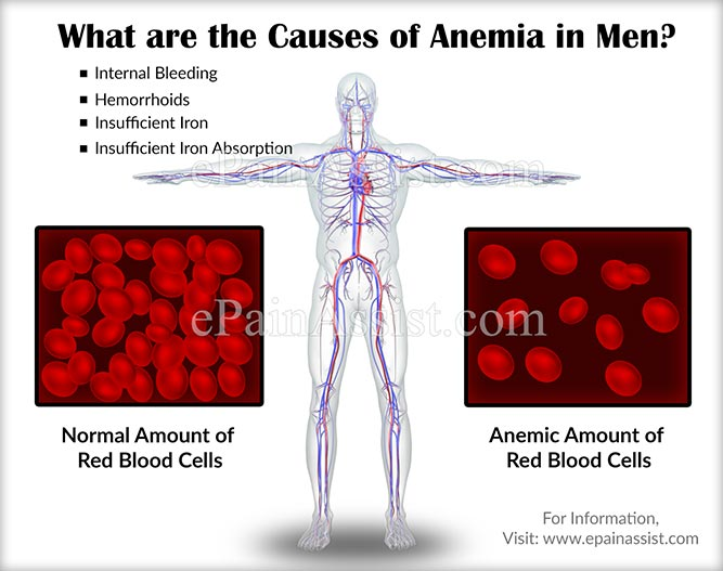 What are the Causes of Anemia in Men?