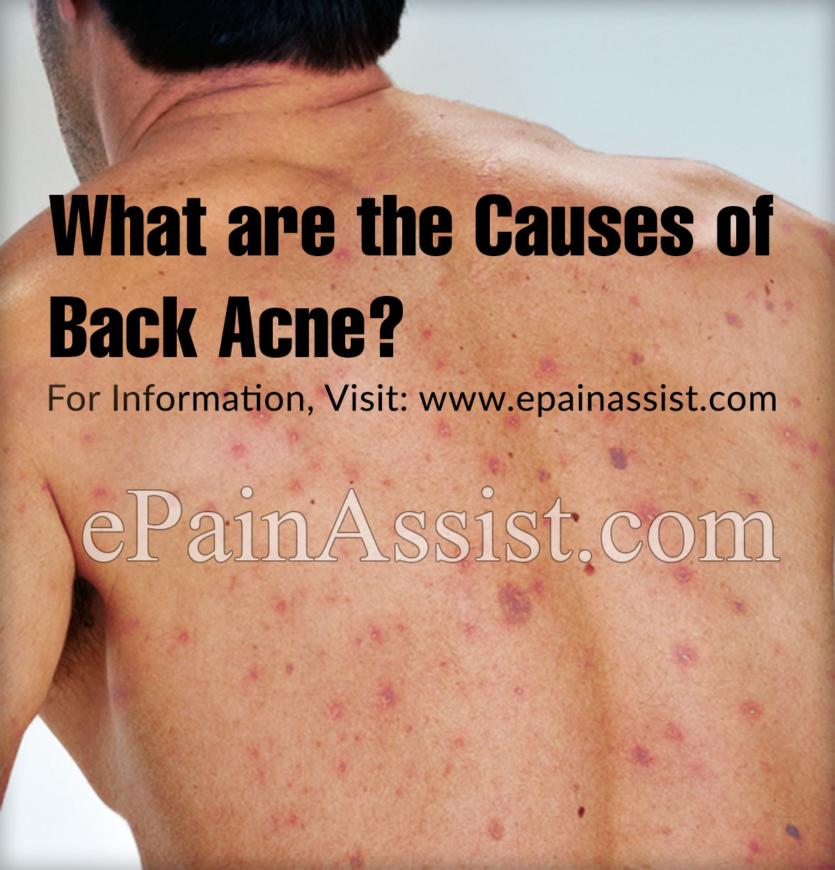 What are the Causes of Back Acne?