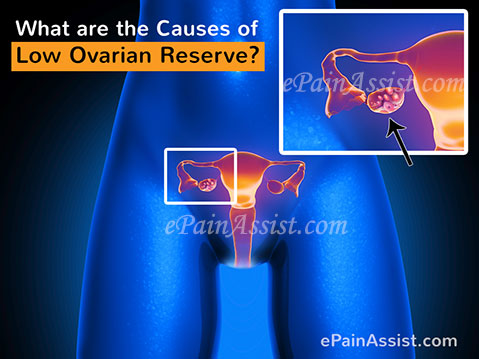 What are the Causes of Low Ovarian Reserve?