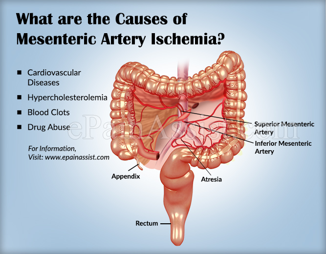 Mesenteric Artery Ischemiacausessymptomstreatment