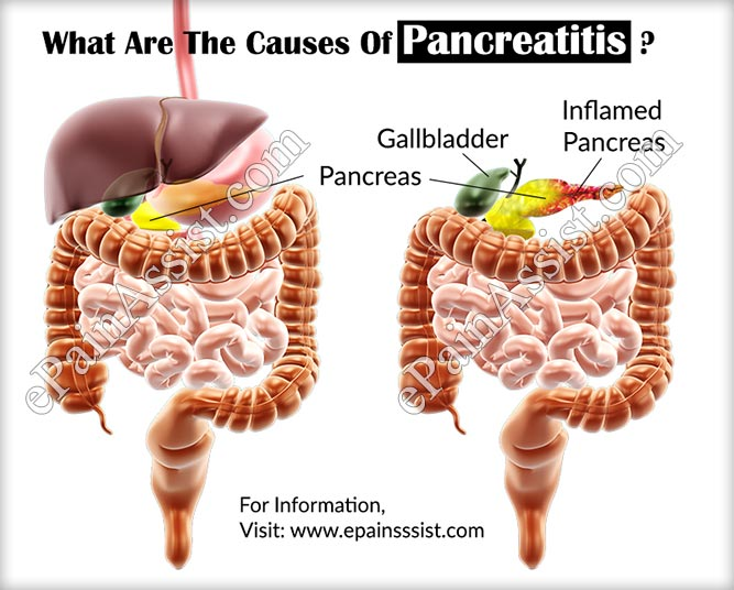 pancreatitis causes and symptoms Learn more about pancreatitis including its causes, symptoms, prevention and  treatment.