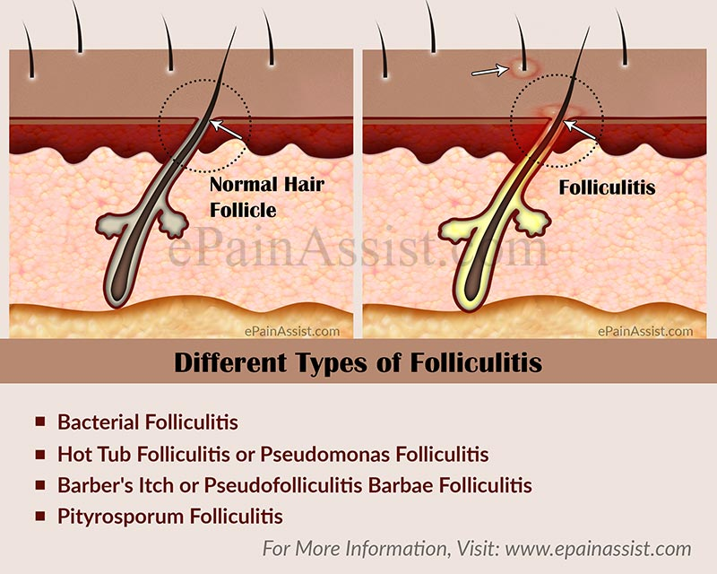 Is Folliculitis Contagious And How To Get Rid Of It