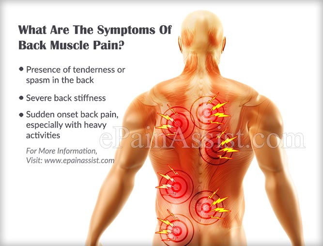 What Are The Symptoms Of Back Muscle Pain?