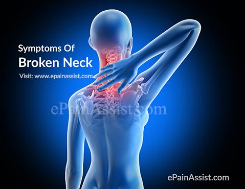 What Are The Symptoms Of Broken Neck Or Neck Fracture?