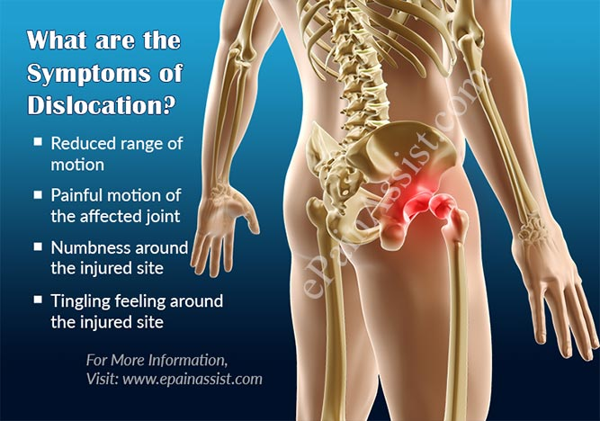 What are the Symptoms of Dislocation?
