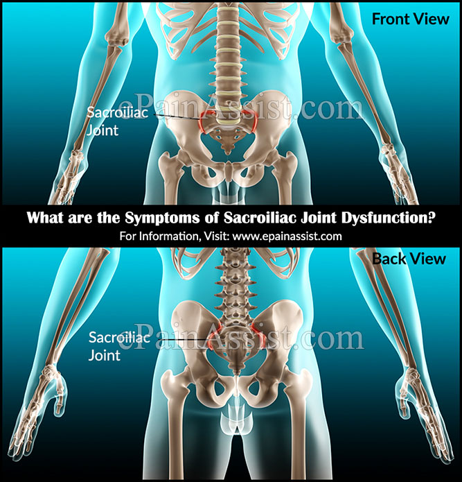 What are the Symptoms of Sacroiliac Joint Dysfunction?