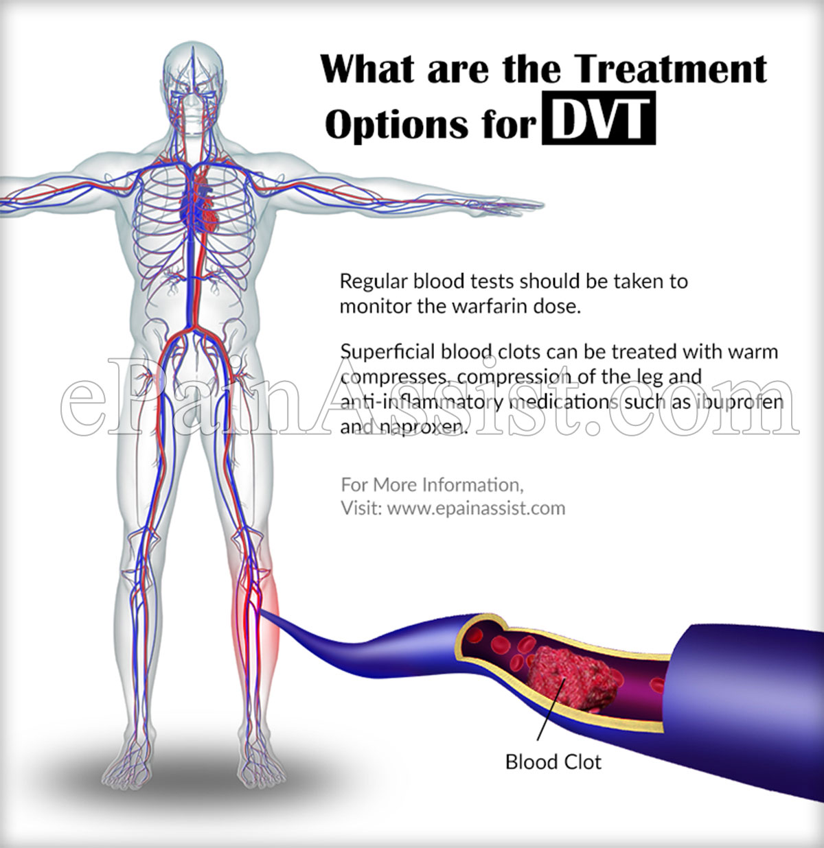 dvt or deep vein thrombosis:causes|symptoms|treatment, Human Body