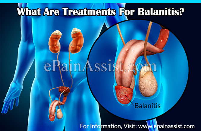 What Are Treatments For Balanitis?