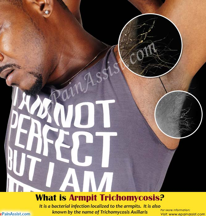 What is Armpit Trichomycosis?