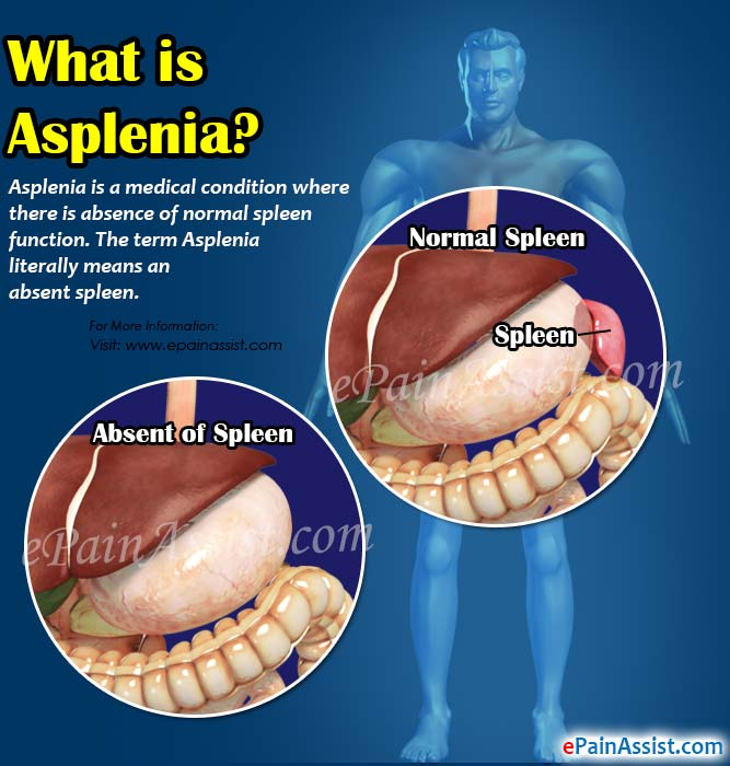 What is Asplenia?