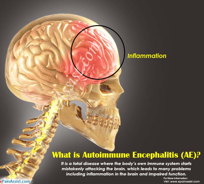 What is Autoimmune Encephalitis (AE)?