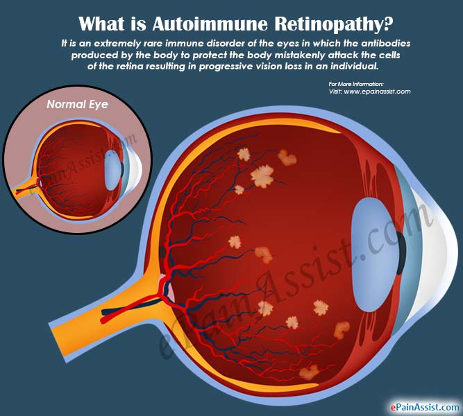 What Is Autoimmune Retinopathy Amp How Is It Treated
