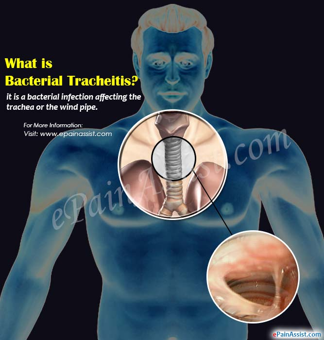 What is Bacterial Tracheitis?