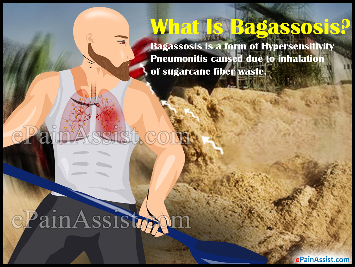 What Is Bagassosis?