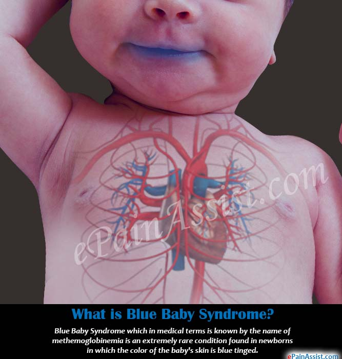 What is Blue Baby Syndrome?