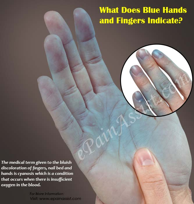 What Does Blue Hands And Fingers Indicate